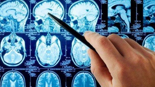 Aneurisma cerebral: causas, sintomas e prognóstico 1