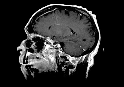 Angioma venoso: características, sintomas e tratamentos 42