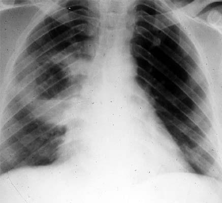 Síndromes pleuropulmonares: tipos, causas e tratamentos 1