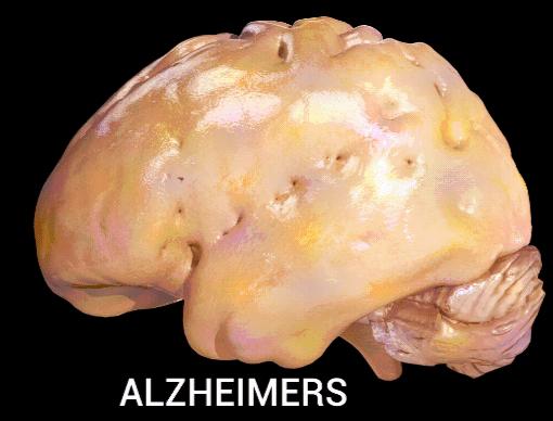Atrofia cerebral: características, sintomas e causas 1