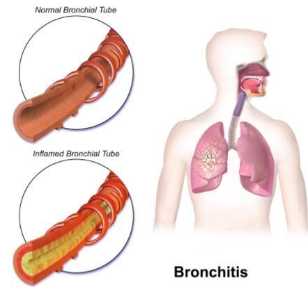 Doenças respiratórias mais comuns e suas características 3
