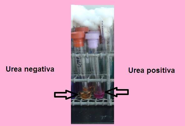 Caldo de ureia: fundação, preparação e usos 1