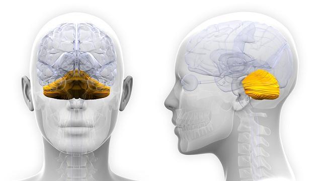 Ataxia cerebelar: sintomas, causas, tratamento 2