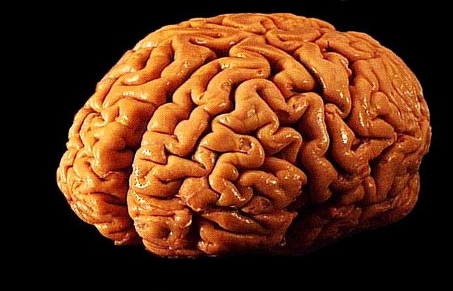Quanto pesa o cérebro de um adulto? 1