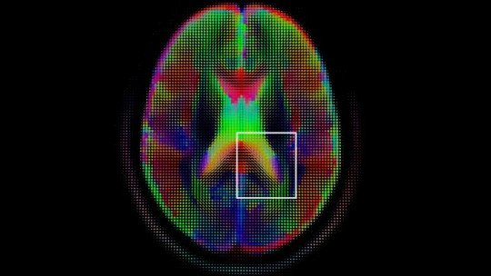 O que é ciência cognitiva? Suas idéias básicas e fases de desenvolvimento 1