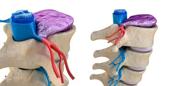 Doenças do sistema ósseo e prevenção 3