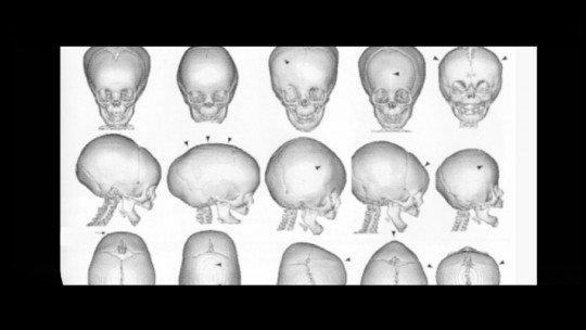 Craniossinostose: tipos, causas e tratamento 7