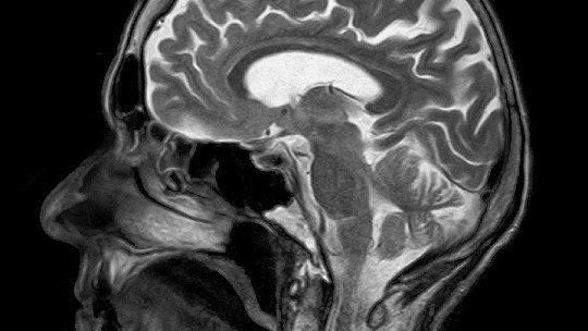 Criptomnésia: quando seu cérebro se plagia 13