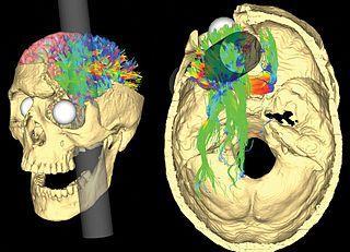 Phineas Gage: o caso que mudou a neurociência 2