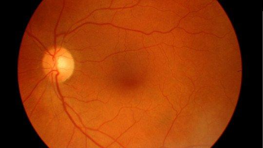 Degeneração macular: tipos, sintomas e tratamento 1