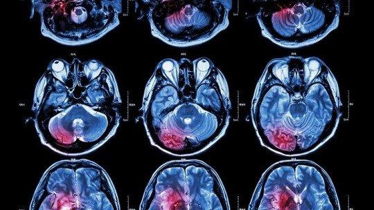 Diferenças entre neuropsicologia e neurologia 1