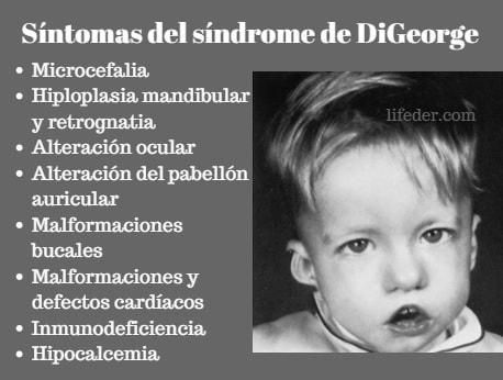 Síndrome de DiGeorge: sintomas, causas, tratamento 15