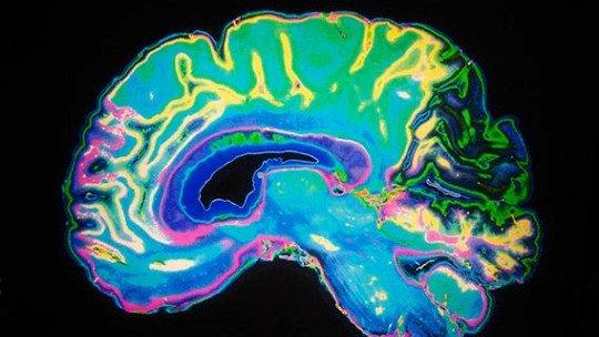 Dopamina: 7 funções essenciais deste neurotransmissor 1