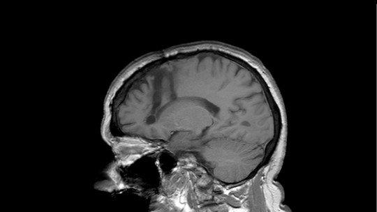 Os efeitos da lobotomia cerebral: um resumo 1