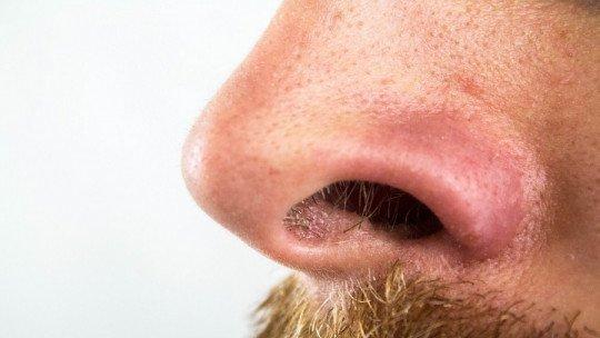 Como remover cravos do nariz: 7 truques e remédios 1