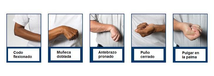 Espasticidade: sintomas, causas e tratamentos 2