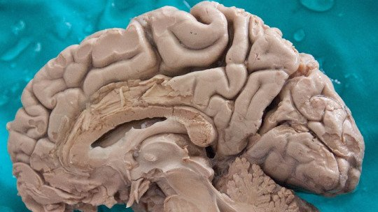 Hemisfério cerebral direito: partes, características e funções 1