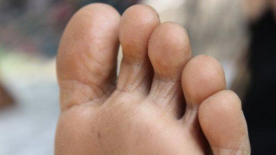 Fungo do pé: causas, sintomas e tratamento 1