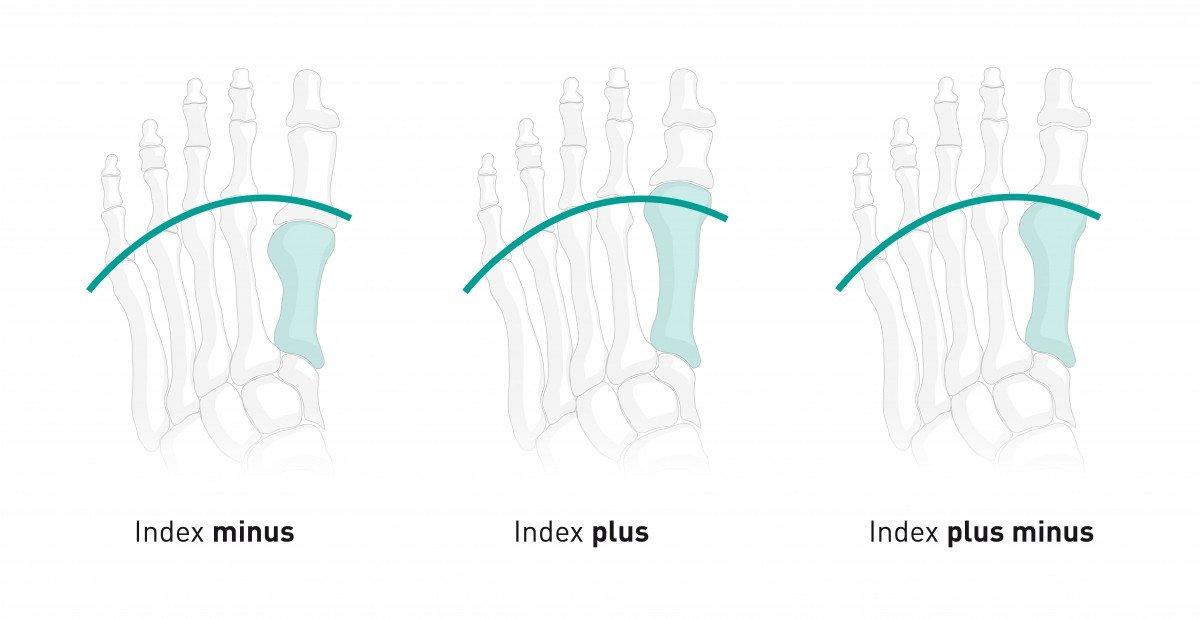 Tipos de pés: como você é e a quais patologias você está propenso? 4