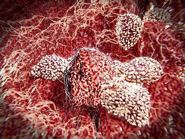 Linfócitos altos (linfocitose): valores normais, causas, sintomas 2