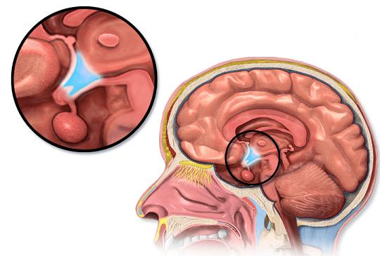 Hipotálamo: Funções, Anatomia e Doenças 2