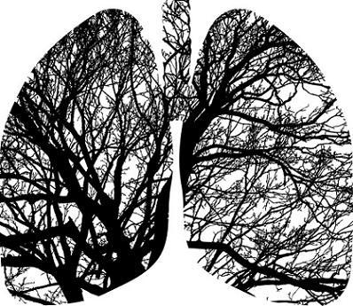 Pneumatocele: sintomas, causas e tratamentos 1
