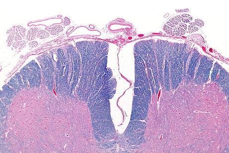 Medula Espinhal: Peças, Funções e Anatomia (com imagens) 10