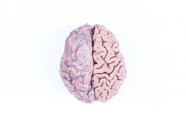 Hemisfério cerebral direito: características e funções 5