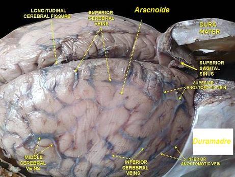 Meninges cerebrais: camadas e espaços (com imagens) 3