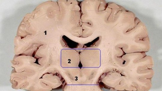 Mencéfalo: características, partes e funções 1