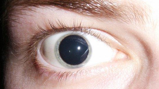 Midríase (dilatação extrema da pupila): sintomas, causas e tratamento 1