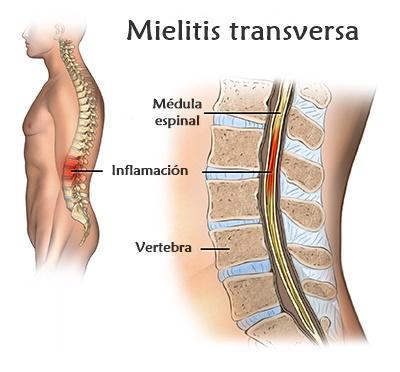 Mielite transversa: sintomas, causas, tratamento 2