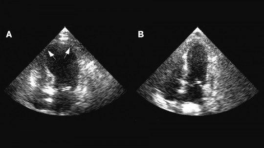 Cardiomiopatia de Tako-tsubo: o que é, sintomas, causas e tratamento 1