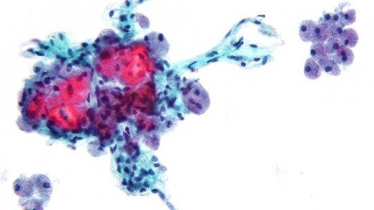 Neoplasia: tipos, sintomas, causas e tratamento 1