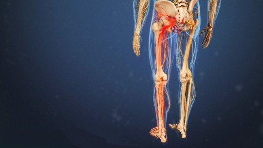 Nervo isquiático (isquiático): anatomia, funções e patologias 1