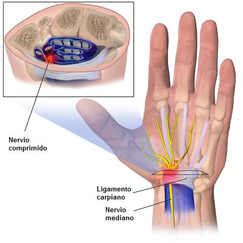 Nervo mediano: estrutura, funções e significado clínico 1