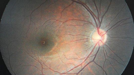 Nervo óptico: partes, caminho e doenças relacionadas 1