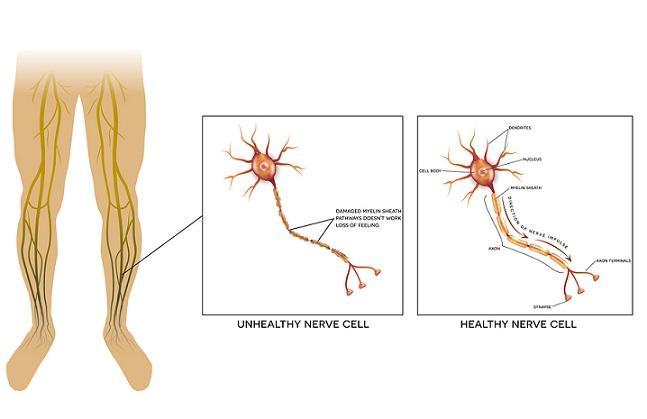 Neuropatia diabética: sintomas, causas e tratamento 1