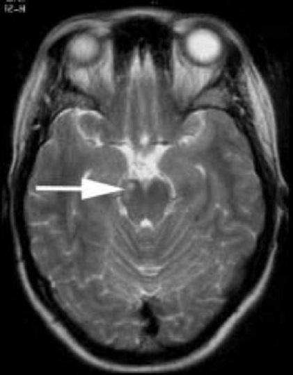 Neurossífilis: sintomas, causas, tratamentos 41