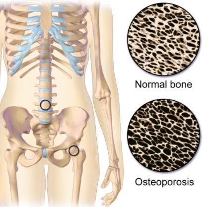As 4 principais diferenças entre raquitismo e osteoporose 1