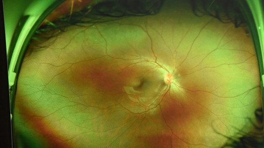 Partes da retina: camadas e células que a compõem 1