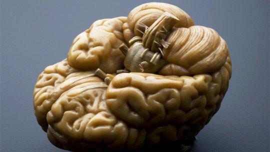Nossa personalidade é descrita pela forma do cérebro 1