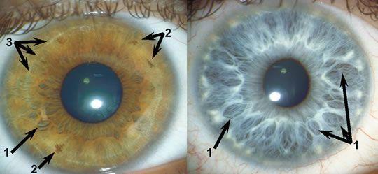 Como ler os olhos de uma pessoa: 11 pontos essenciais 8