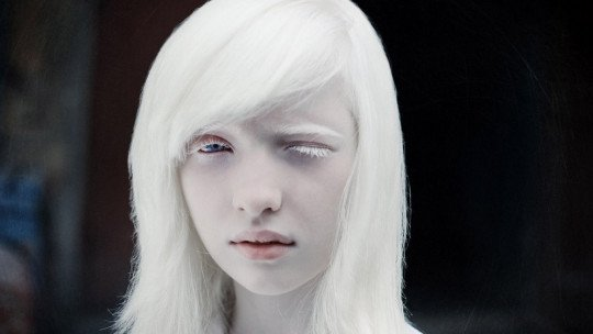 Pessoas albinas: genética e problemas que sofrem em diferentes partes do mundo 1
