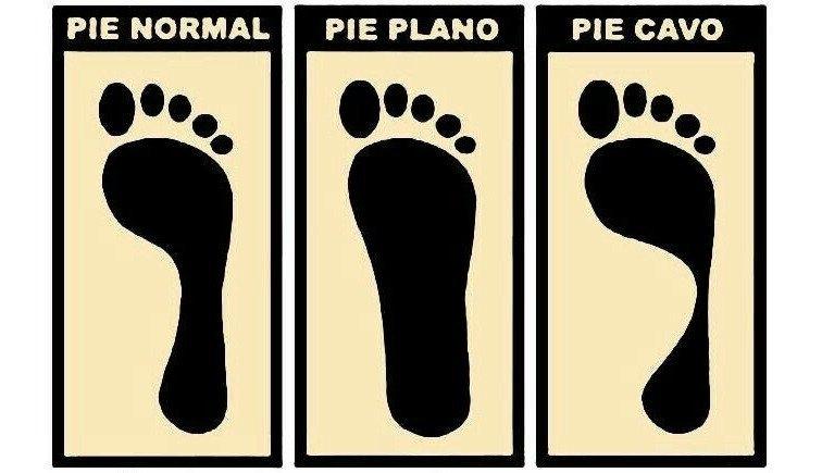 Tipos de pés: como você é e a quais patologias você está propenso? 2