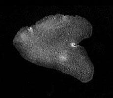 Placozoos: características, reprodução, alimentação 2