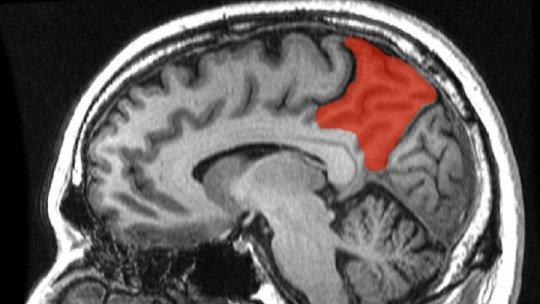 Precuña: características e funções desta parte do cérebro 1