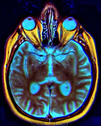 Quiasma óptico: características, anatomia e lesões 2