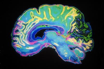 Neurociência cognitiva: história, quais estudos e aplicações 3
