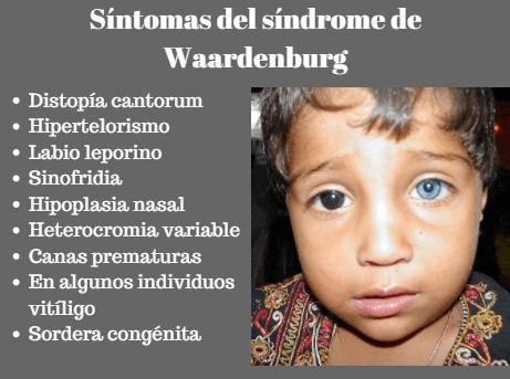 Síndrome de Waardenburg: sintomas, causas, tratamento 3